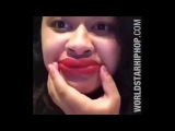 Yikes: Kylie Jenner's Lip Challenge Fail Compilation!