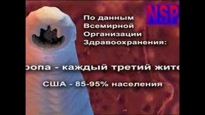 Фильм паразиты в организме человека - Признаки паразитов в человеке - Видео о паразитах внутри нас