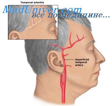 позвоночной артерии,