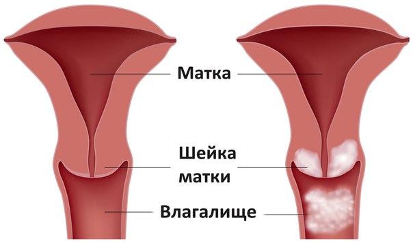 руки во влагалище: