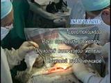 Центр эндокринной хирургии. Операции на щитовидной и околощитовидных железах. Рак щитовидной железы. Щитовидка