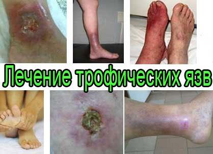 Кожные заболевания - лечение