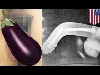 Мужчина сломал пенис во время бурного секса