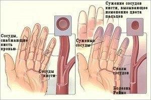Ноющие боли в области желудка отдающие в спину