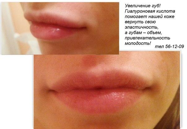 Гиалуроновая кислота в губы цена фото