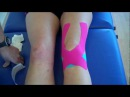 How to apply Kinesiology Taping for Knee Pain Patella tendonitis and Patella femoral pain