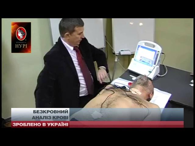 Зроблено в Україні. Харків'янин розробив прилад безкровного аналізу крові