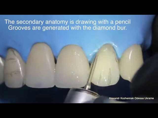 Educational video Direct restoration of frontal teeth Part 2 - Finishing Polishing