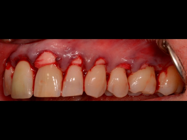 Alloderm Periodontal Surgery for Gum RecessionGraftingRoot Coverage-Upper Teeth.