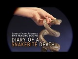 Diary of A Snakebite Death