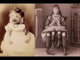 Цирк уродов истории и трагедии цирковых уродцев, 10 самых страшных историй ужасных заболеваний