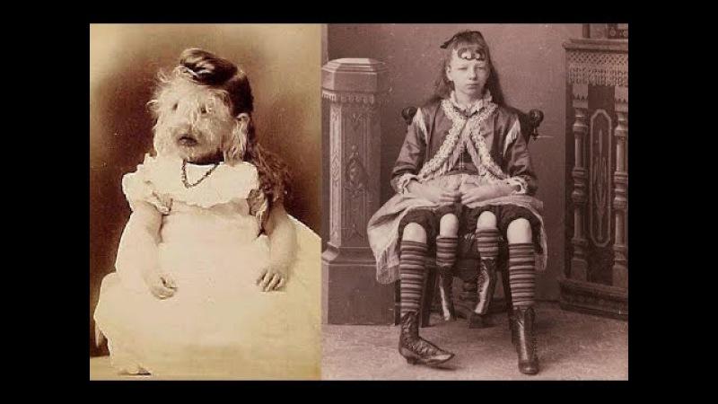 Цирк уродов: истории и трагедии цирковых уродцев