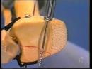 АО видео Перелом лодыжек Тип C