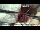 Варикоцеле (varicocele). Мужское бесплодие. Операция Мармар
