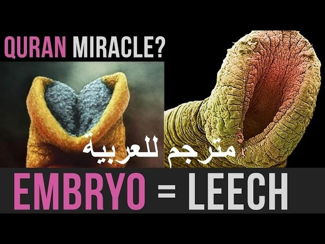 EMBRYO = LEECH AMAZING QURAN MIRACLE MINDBLOW | مترجم للعربية