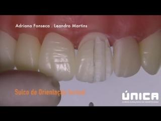 Препарирование резца под мк по технике Силуэт, Adriana Fonseca