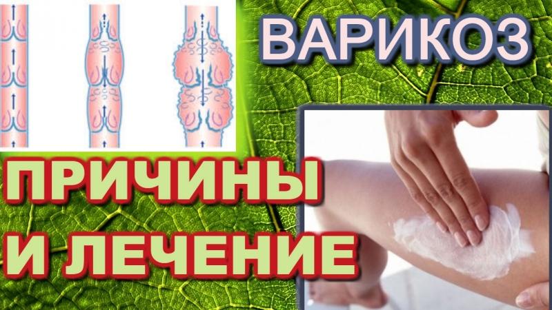 Лечение варикозного расширения вен и причины его появления . Дуйко АА встреча 2018 год май