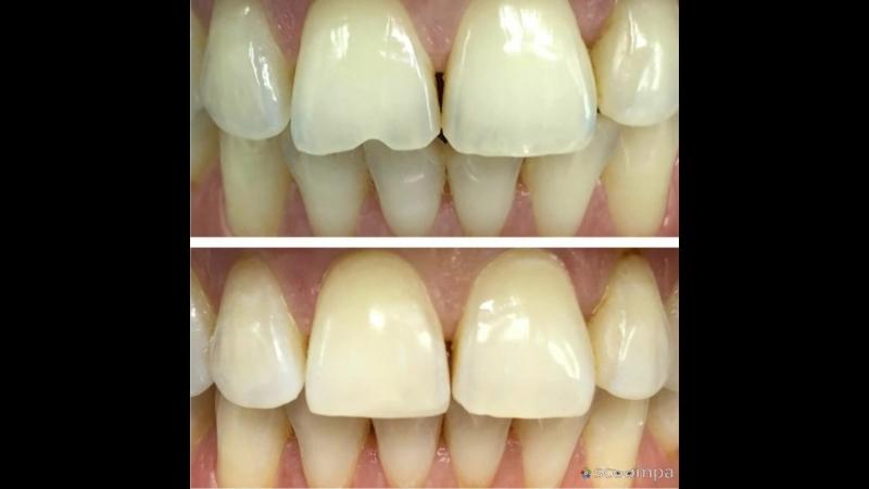 Примеры работ специалистов Современной семейной стоматологии Рич Дент