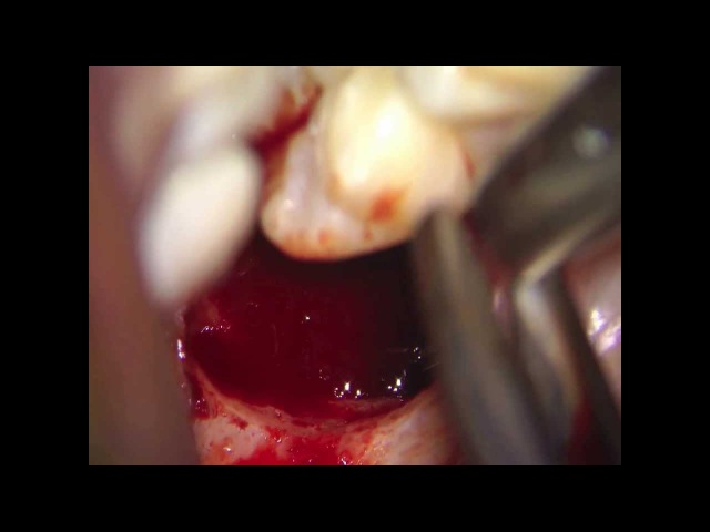 Microscopic vision in oral surgery with Leica M 320