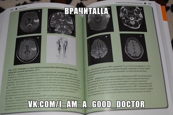 дуус топический диагноз в неврологии скачать