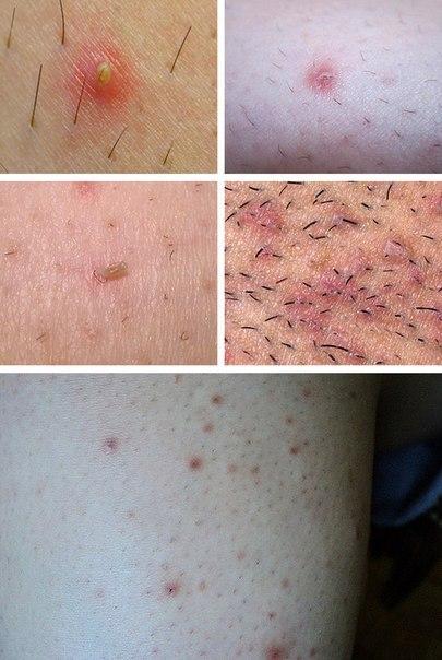 прыщи на ногах после бритья