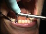 Импланты. Установка импланта Часть 2. Протезирование на имплантах Все этапы протезирования