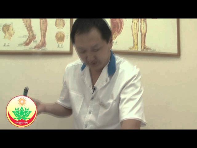 Моксотерапия (цзю-терапия) - прогревание полынными сигарами. Клиника Наран