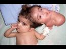 Моя ужасная история My shocking story Аномалии человеческого тела