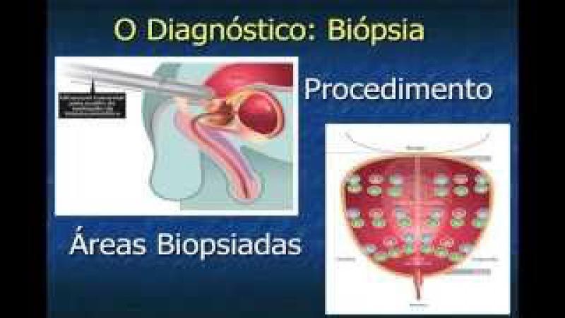 Câncer de Próstata: toque retal, PSA e tratamentos