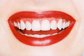 Как получить голливудскую улыбку?