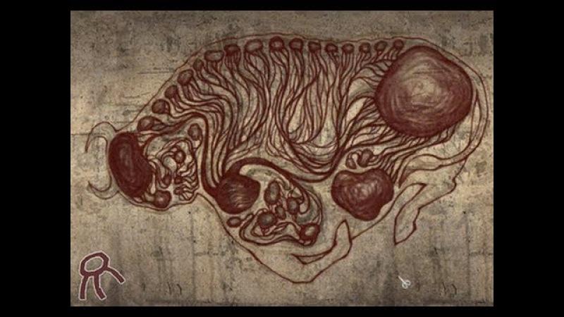 Pathologic (Мор Утопия) ost full