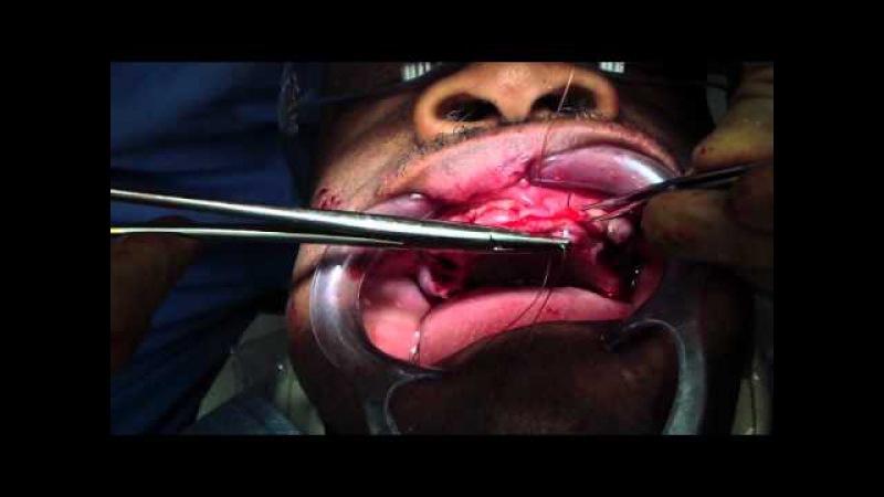 Alveoloplasty Part 22 - Immediate Denture