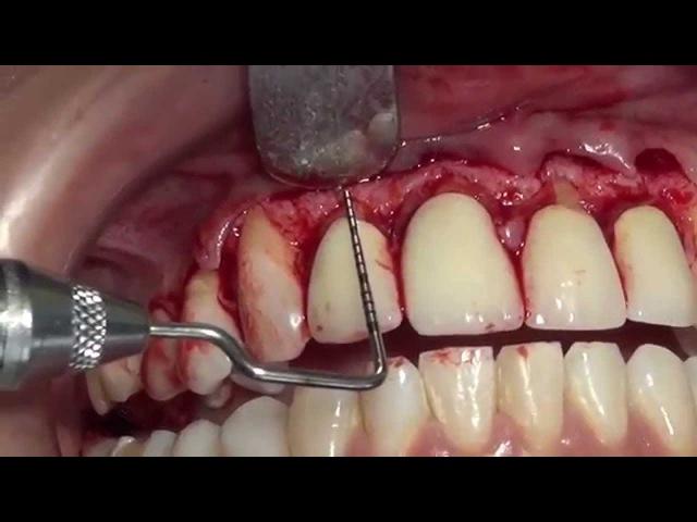 Surgical Crown Lengthening Upper Front Teeth. Kuljeet MEHTA-Periodontist. www:kmperio.co.uk