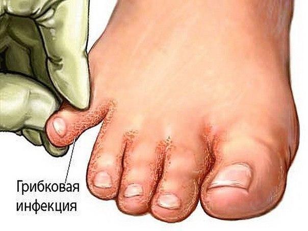 Как лечит вросший ноготь дома
