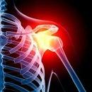 Схваткообразные боли в спине