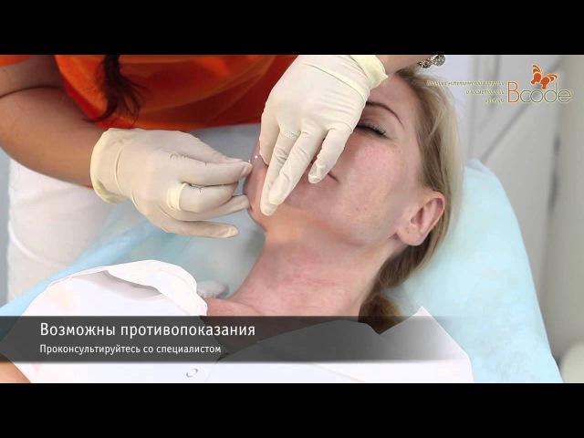 Мезонити коррекция формы губ в БиКод
