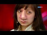 Прямой эфир - Страшно красивые: самая безобразная девушка в мире стала звездой. От 10.06.15