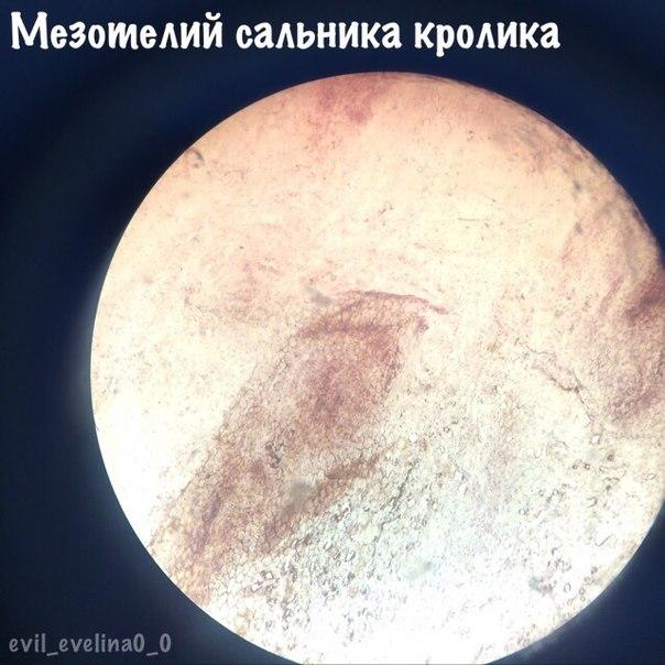 Мезотелий
