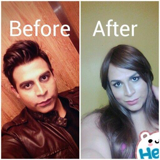 vse-o-gormonoterapii-u-transseksualov