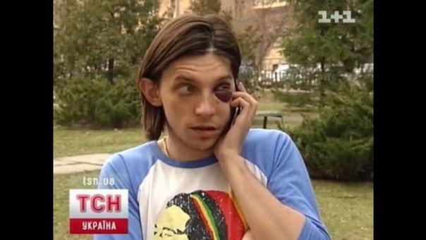 Интерпол объявил в розыск женщину, сбившую певца Ларсона - Цензор.НЕТ 7344