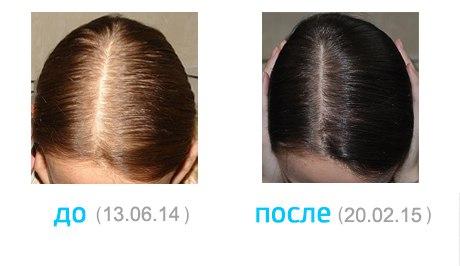 Чего не хватает волосам при выпадении