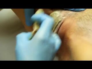 Шугаринг глубокое бикини, все подробности процедуры