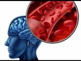 Геморрагический и ишемический инсульт головного мозга лечение. Инсульт симптомы первые признаки