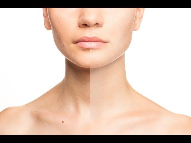 Ретушь в фотошопе Устранение дефектов кожи с помощью инструмента Лечащая кисть