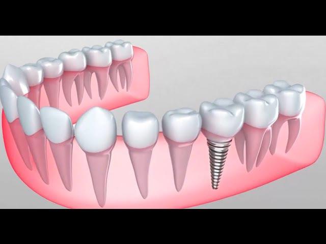 Почему имплантация зубов лучше обычного протезирования