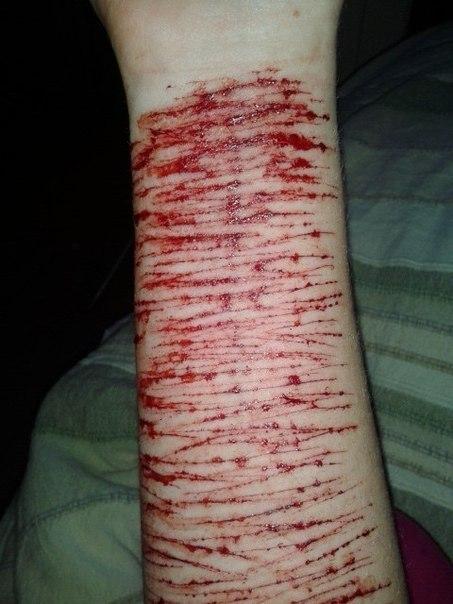 порезанные руки лезвием картинки