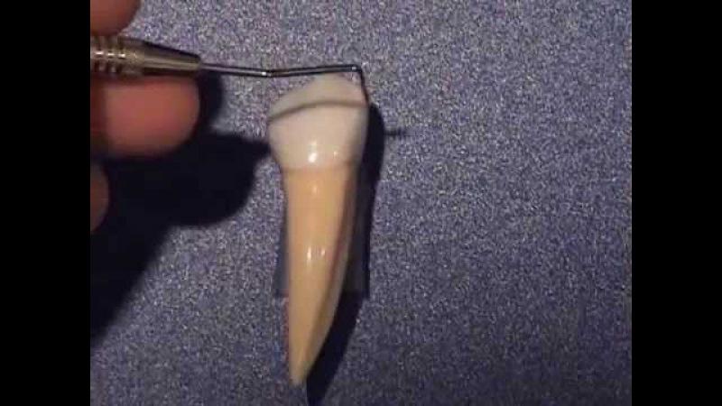 Mandibular 1st Premolar anatomy