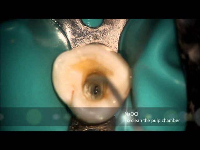 First Mandibular Premolar