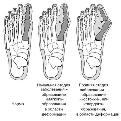 Косточки на ногах причины лечение народные средства отзывы