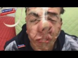 Best Funny Videos #7 Compilation 2015 Scare Cam, Epic Fail...